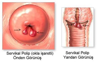 cara mengobati polip rahim secara tradisional